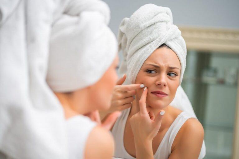 Como tirar mancha de espinha do rosto?