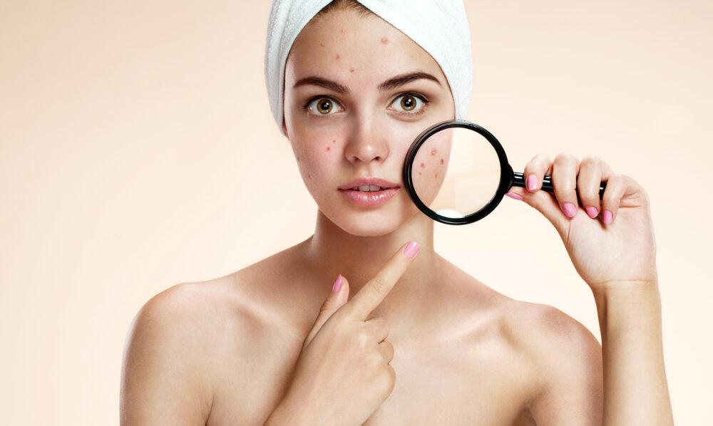 mostrar a acne no rosto