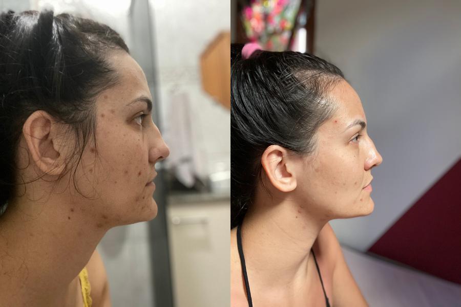 antes e depois creamy