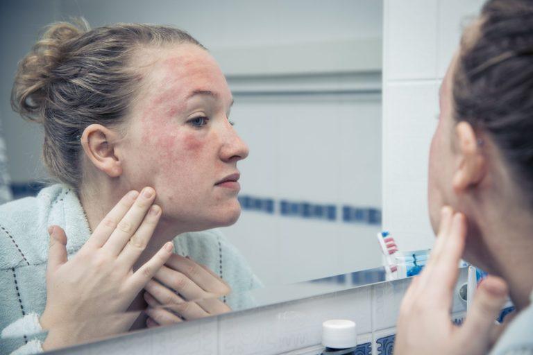 Tudo sobre dermatite atópica e dicas de cuidados para quem tem