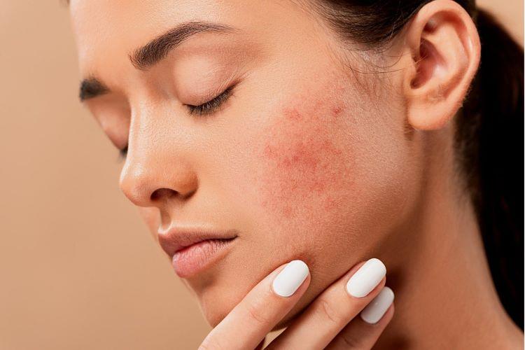 Manchas na pele: o que as causam e como tratá-las?