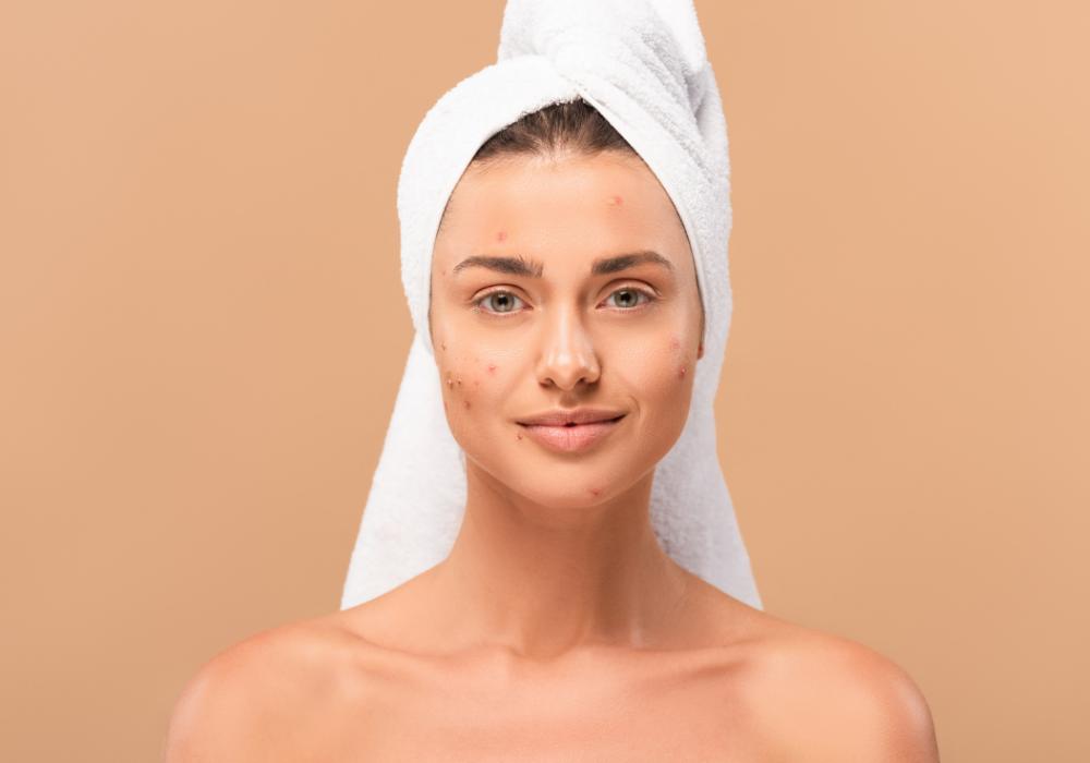 Acne Positivity apoia a autoaceitação da pele real e acneica