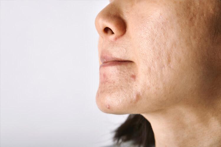 Clarear manchas de acne: qual é o melhor método para isso?