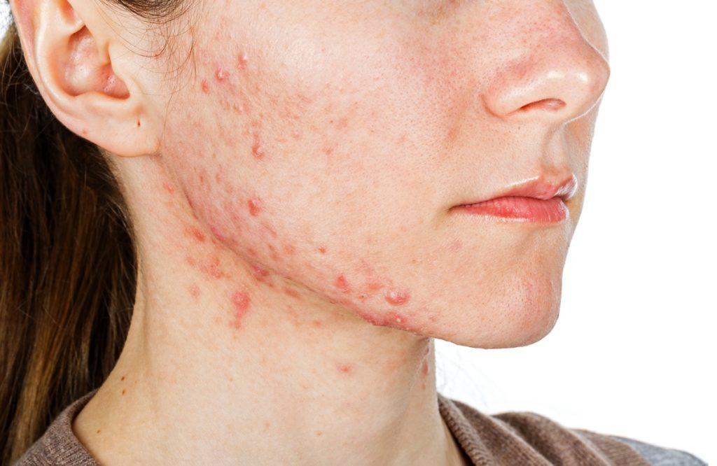 Acne da mulher adulta: causas, prevenção e tratamento