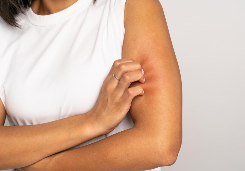 alergia na pele sintomas