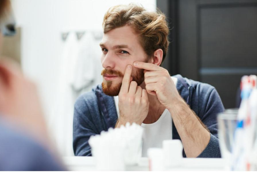 Espremer cravos e espinhas em casa: será que é uma boa ideia?