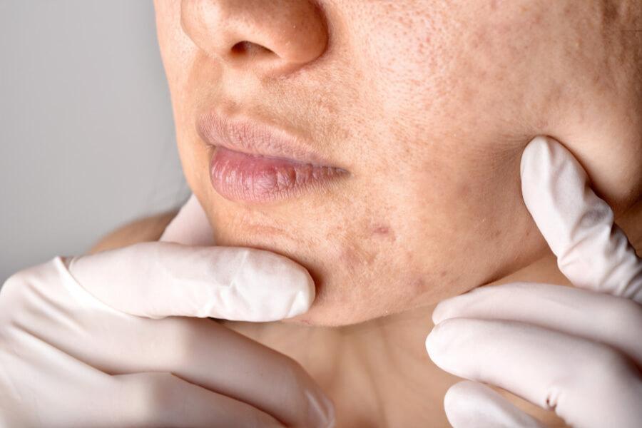 mapa da acne