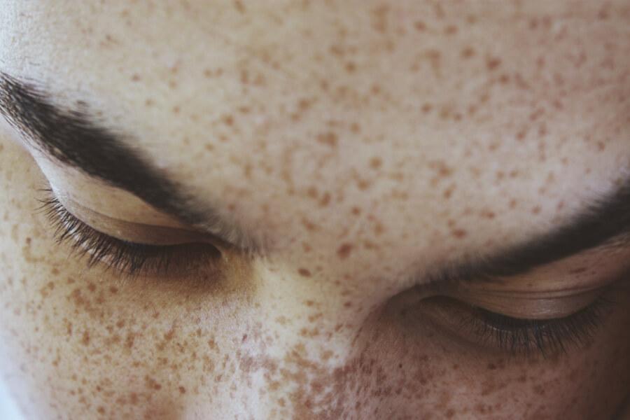 Sardas no rosto: o que são e como elas aparecem?