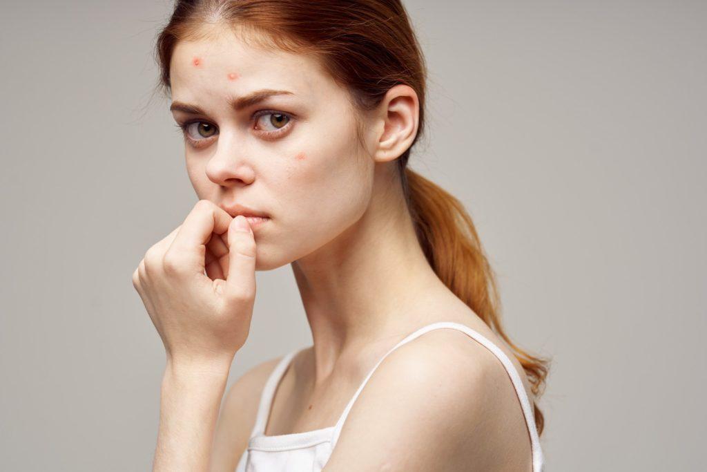 Whey Protein dá espinha? Entenda sua relação com a acne