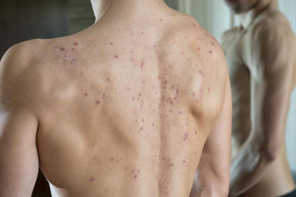 whey protein causa acne